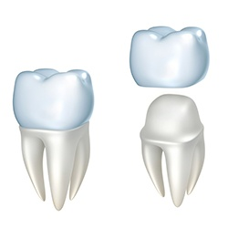 Animation of tooth before and and after dental crown placement