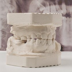 crooked teeth dental mold