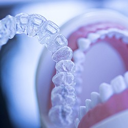 Invisalign and dental model