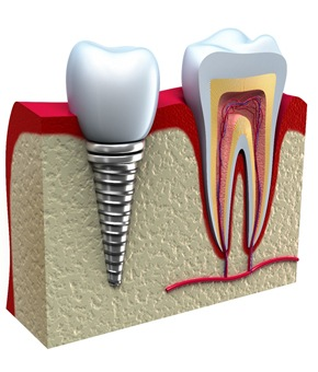 tooth next to dental implant