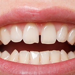 Closeup of smile with gap between front teeth