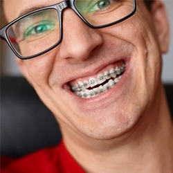 man with braces