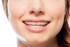Woman with clear braces smiling